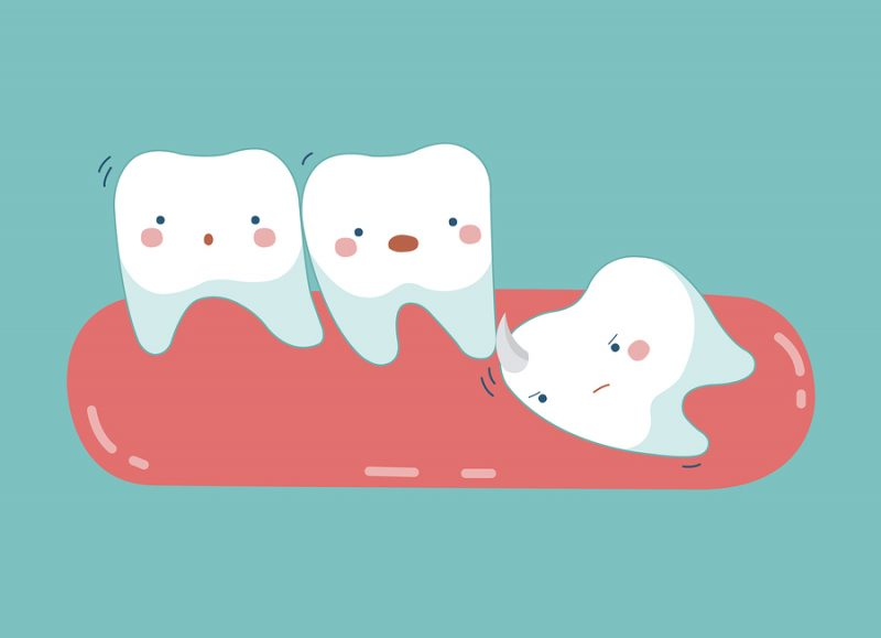 dentist in Armadale wisdom teeth removal