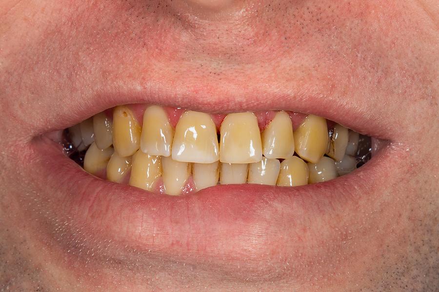 emergency dentist in Armadale